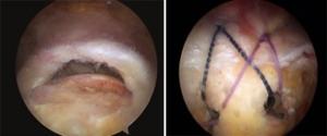 I tendini della cuffia dei rotatori prima (a sinistra) e dopo (a destra) la sutura in artroscopia.