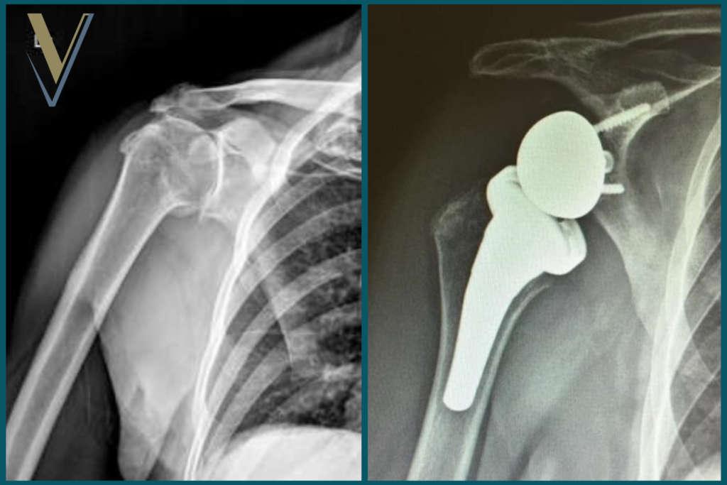Artrosi di spalla e protesi inversa - Dr. Ortopedico Visona