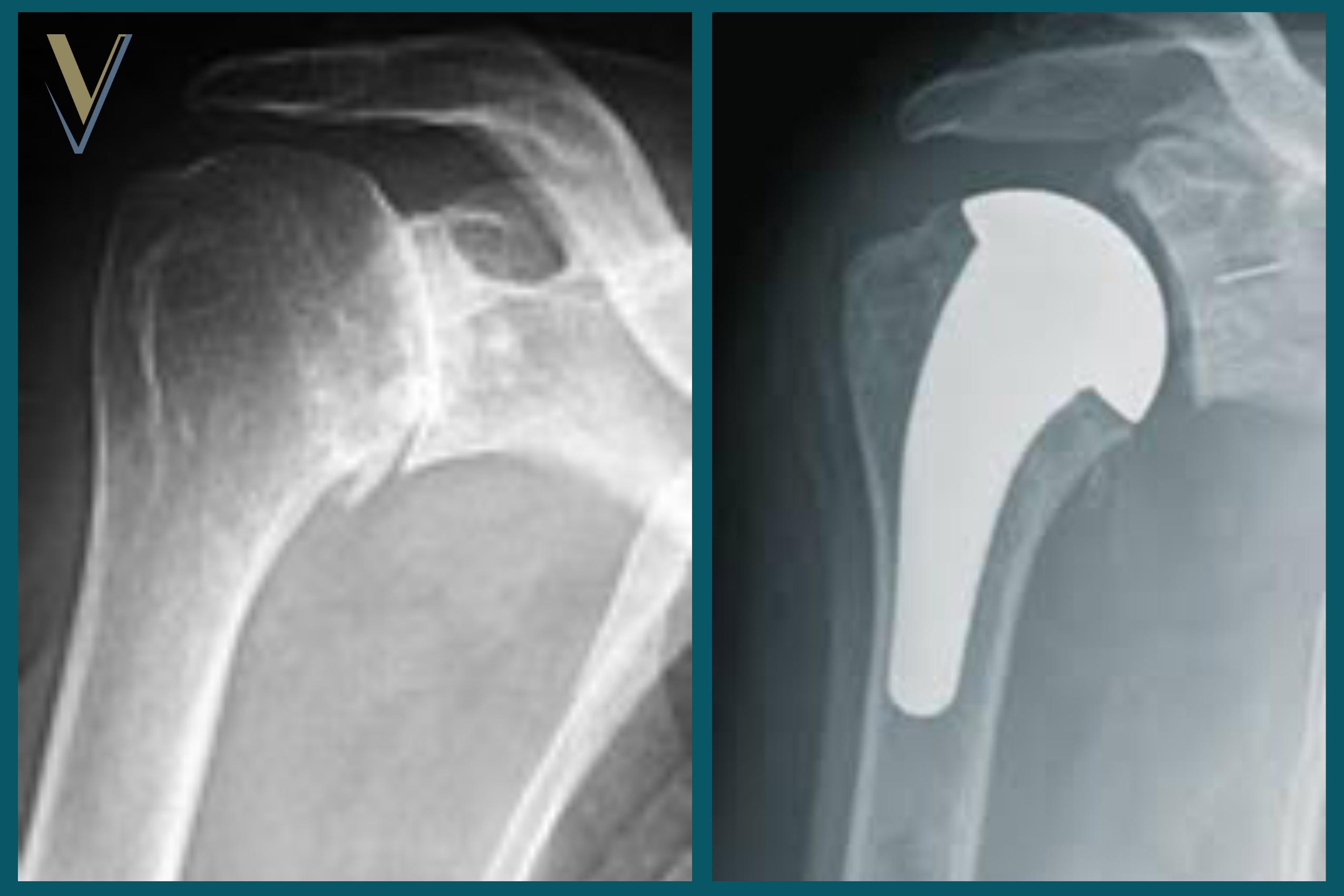 Artrosi di spalla e protesi anatomica - Dr. Ortopedico Visona